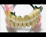 Мошенники в стоматологии